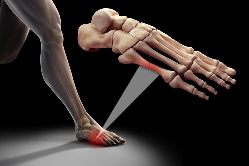 Foot pain in dance